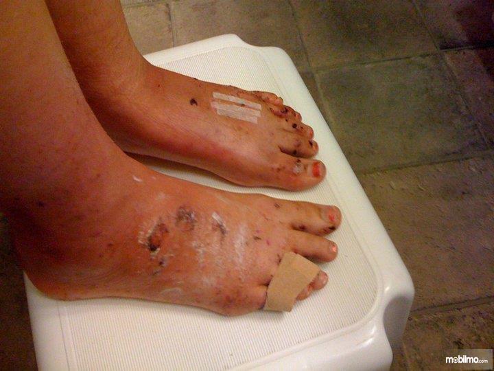 Foto kaki Bethany Benson yang patah dihantam airbag
