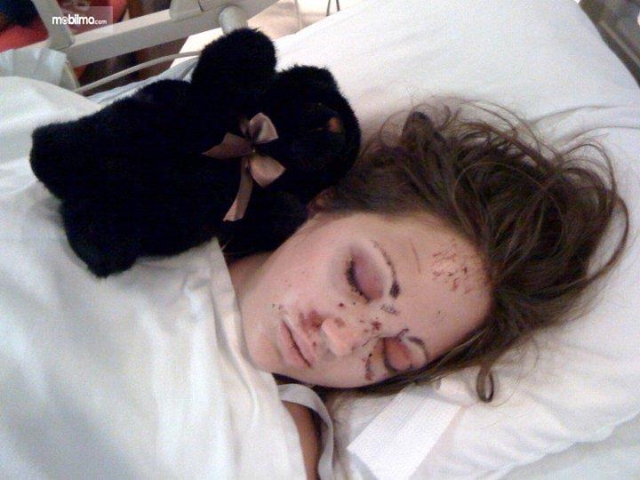 Wajah Bethany Benson cedera parah